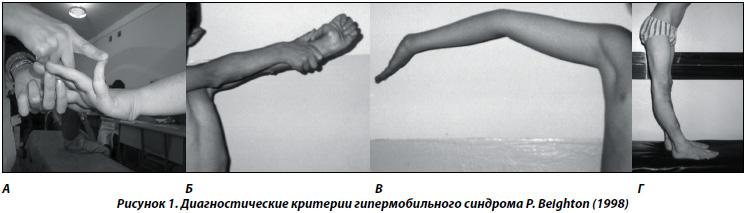 Гиперподвижность бедренных суставов препараты обезболивающие суставные и ревматические боли