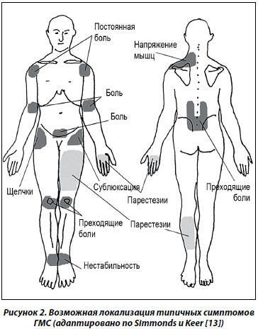 синдром подвижных суставов