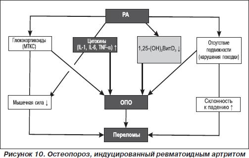 кишечника (болезнь Крона,