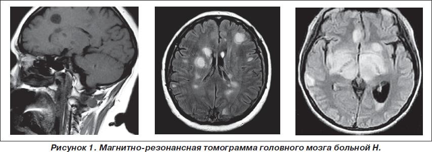 Мультикистоз головного мозга что такое
