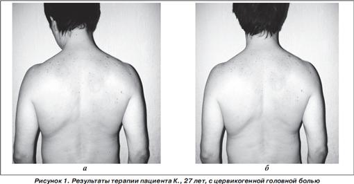 Атопический дерматит татуаж