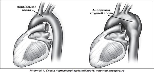 Симптомы при грыже диска шейного отдела