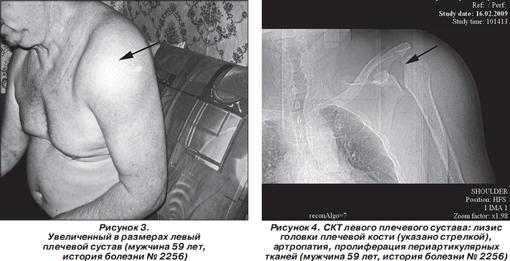артроза плечевого сустава:
