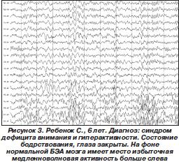 Синдром дефицита внимания с гиперактивностью и без Новые подходы
