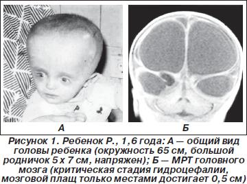 Боль в левом боку отдающия в яичко