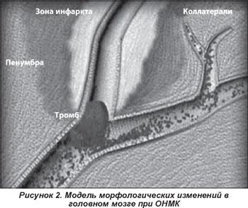 Лечение коленных суставов настойкой прополиса