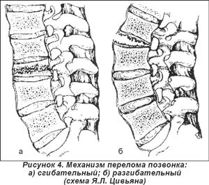 остеопатия шейного отдела позвоночника