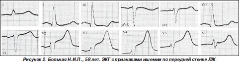 Обезболивание операций у больных, перенесших инфаркт миокарда ...