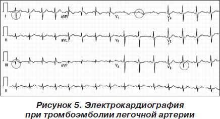 Симпозиум: Тромбоэмболия легочной артерии: алгоритмы диагностики и ...