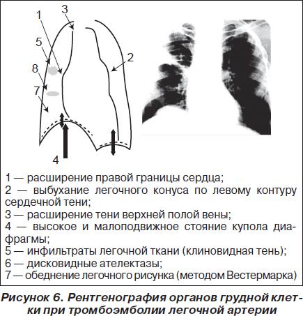 Признаки и диагностика тромбоэмболии легочной артерии