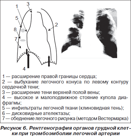 диагностики ТЭЛА