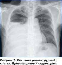 Рак печени хирургическое лечение