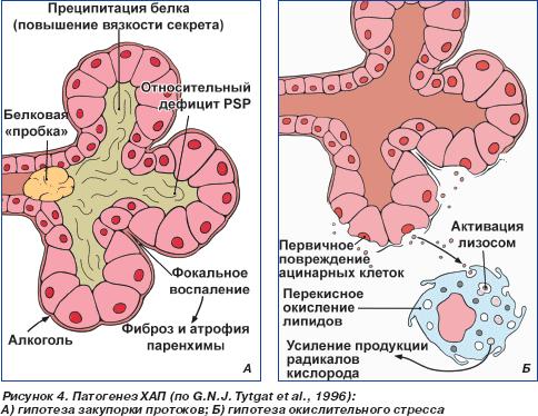 острого панкреатита и др.