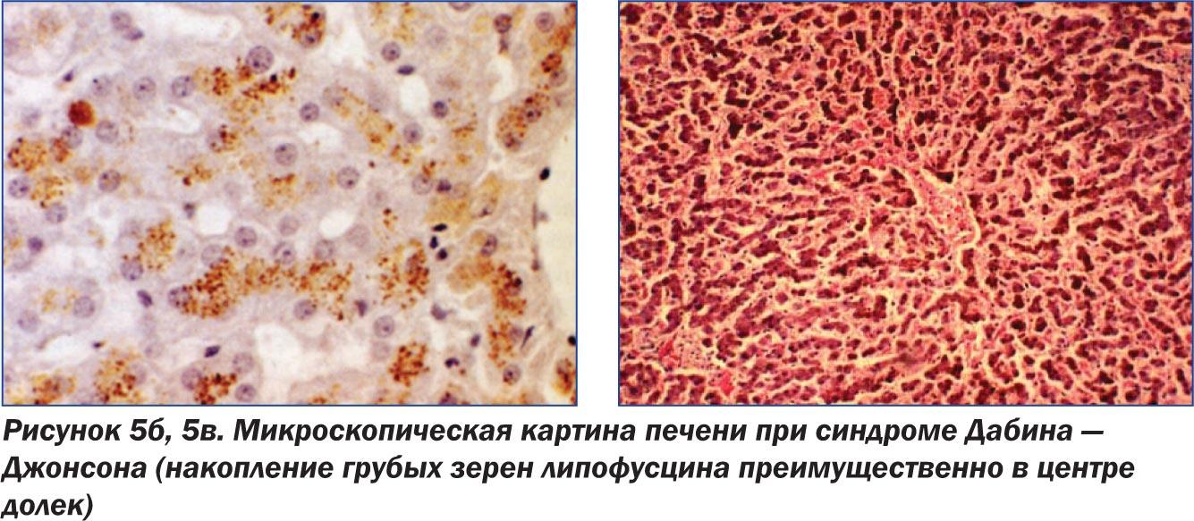 всегда ли повышены эозинофилы при аллергии