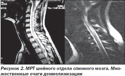 35 неделя беременности боли слева в спине