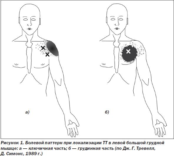Синдром Титце фото