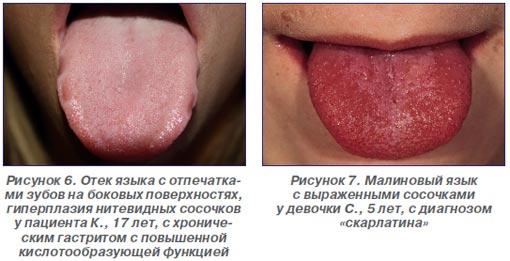 От чего может печь язык лечение в домашних условиях