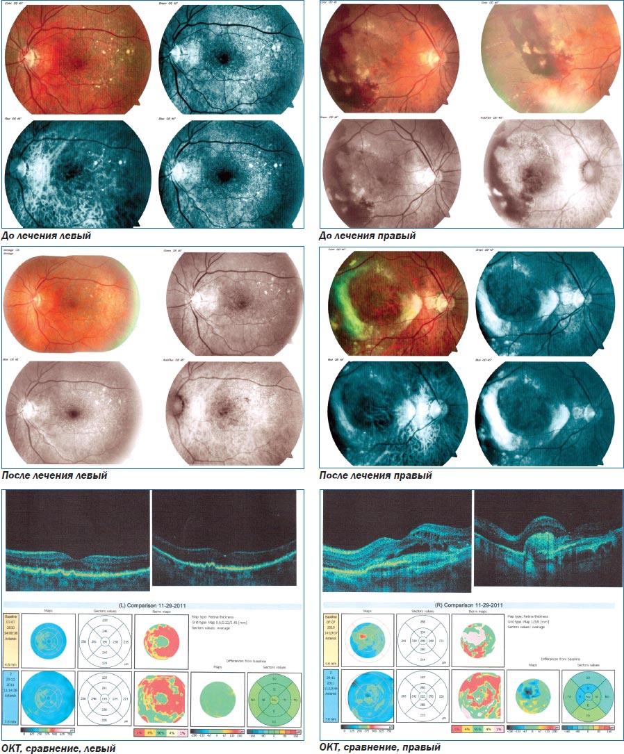 Как восстановить зрение при помощи очков в дырочку