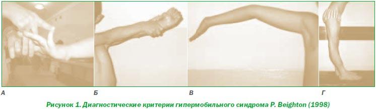 Гипермобильные суставы фото бутакова ольга алексеевна суставы