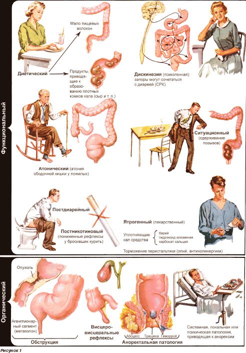 Массаж кишечника при запорах беременным 29