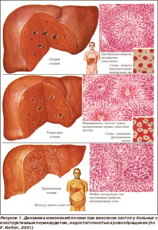 Узи признаки гепатомегалии