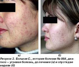 бактериальная инфекция кожи фото