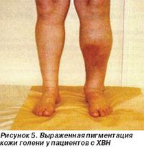 Варикозное расширение вен варикоз при беременности