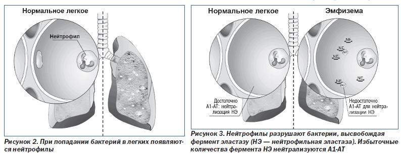 Себорейный дерматит лечение народными средствами