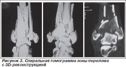 Оскольчатый внутрисуставной перелом со злокачественные опухоли костей и суставных хрящей
