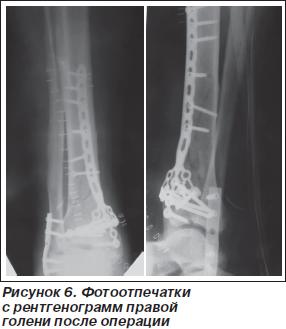 История болезни закрытый многооскольчатый внутрисуставной перелом нижней трети правой бол стоимость искуственного сустава
