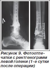 История болезни закрытый многооскольчатый внутрисуставной перелом нижней трети правой бол косточки суставы