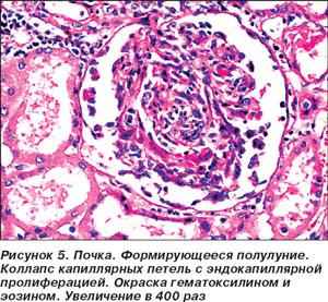 enterococcus-faecalis-vo-vlagalishe-lechenie