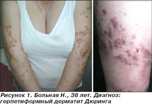 Харканье венгрия санатории для лечения псориаза