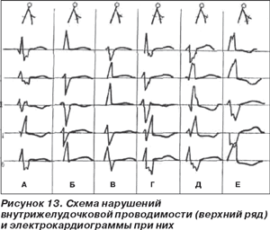 внутрижелудочковой проводимости сердца у беременных