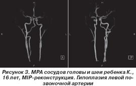 Гипоплазия правой позвоночной артерии что это такое и лечение