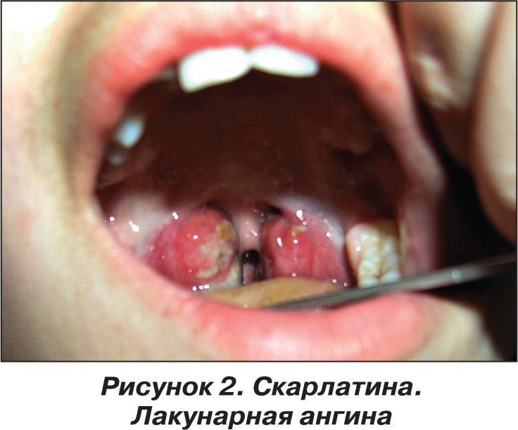Скарлатина у грудных детей симптомы и лечение фото