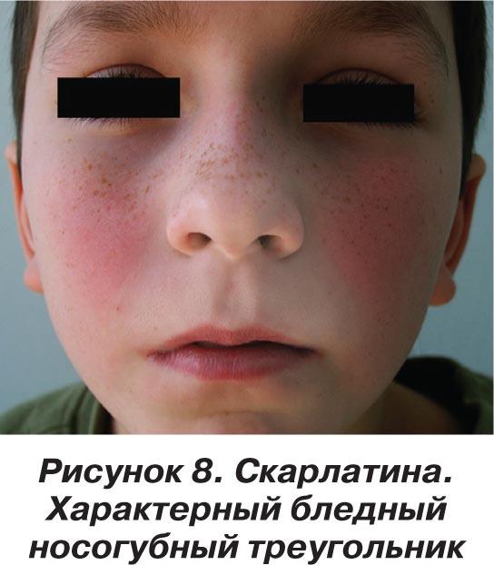 белые прыщи на лице у ребенка 10 лет
