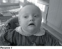 Форма черепа у ребенка 59