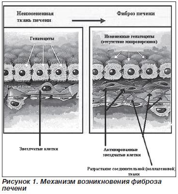 Павлов фиброз печени