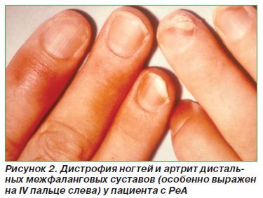 Розовый лишай фото симптомы лечение у человека
