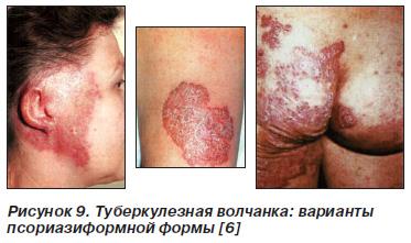 Туберкулез кожи, Интернет-издание - Новости медицины и фармации