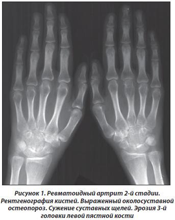 Остеопороз больших суставов какие суставы позволяют выполнять пронацию и супинацию предплечья