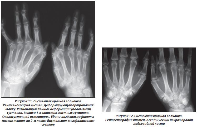 Дифференциальная рентгенологическая диагностика поражения суставов кисти при ревматически строение лучезапястного сустава человека анатомия