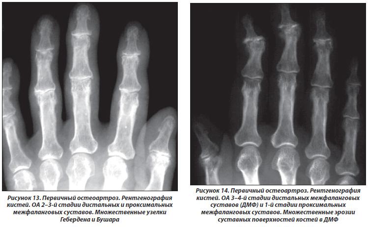 Остеофит на межфаланговом суставе 1го пальца стопы мрт коленного сустава цкдк пирогова