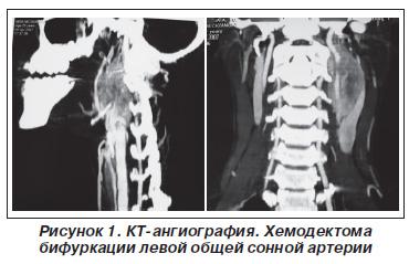 Опухоль Каротидного Тельца Фото