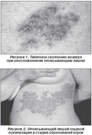 геморрагическая форма герпес - Геморрой
