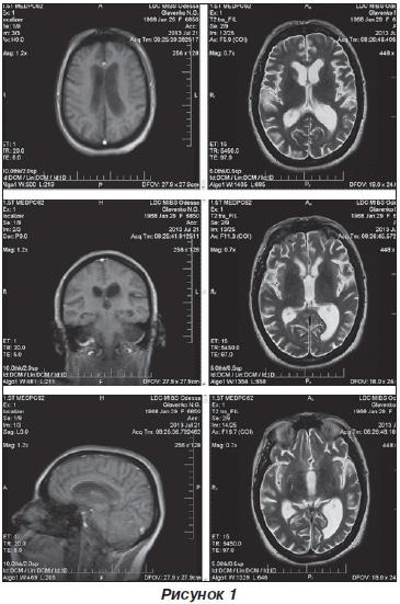 Мр признаки незначительной наружной гидроцефалии
