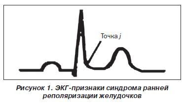 Синдром ранней реполяризации на экг как лечить