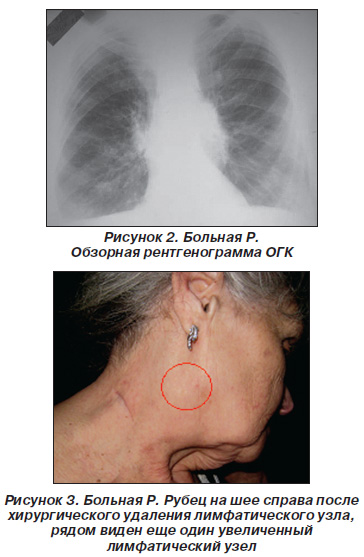 болит в области лимфоузла на шее