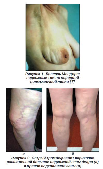 Кировоград лечение варикоза перекисью водорода
